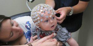 Лечение эпилепсии у малышей