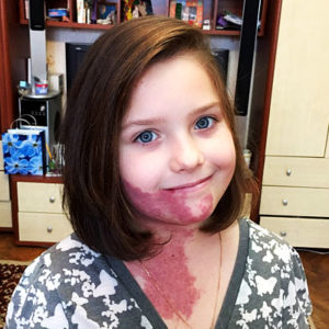 Помочь Кате Заевой избавиться от опухоли